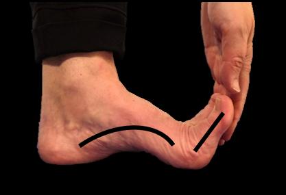 Henkilö taivuttaa varpaita koukkuun käden avulla, jolloin pitkittäisholvi nousee.