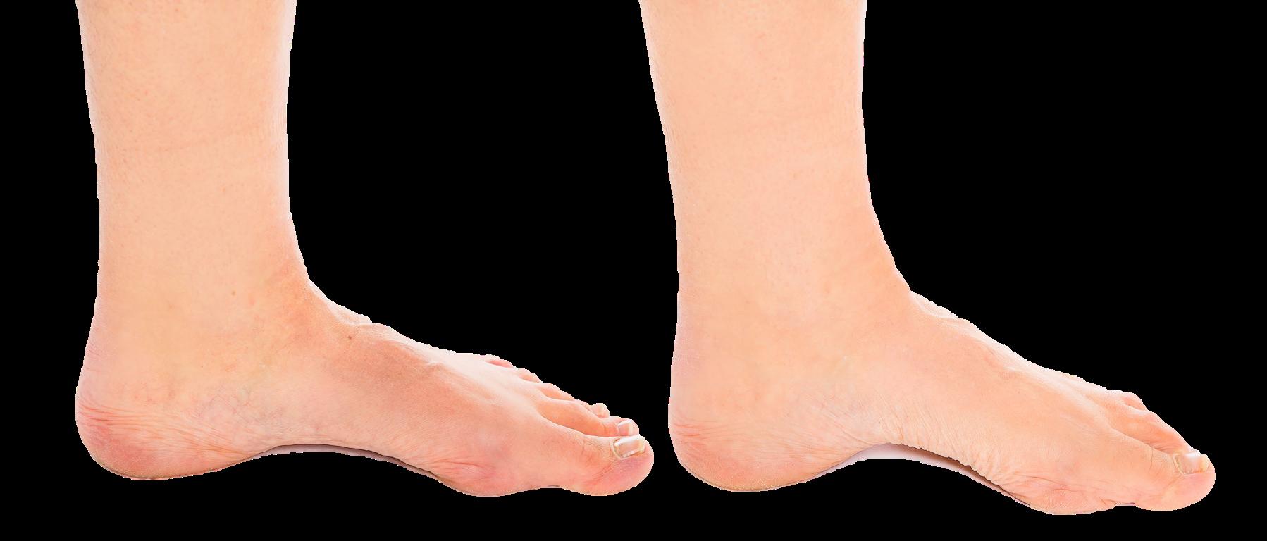 Jalkaterä ensin lepoasennossa lattiaa vasten ja sitten aktivoituneena harjoitteeseen.